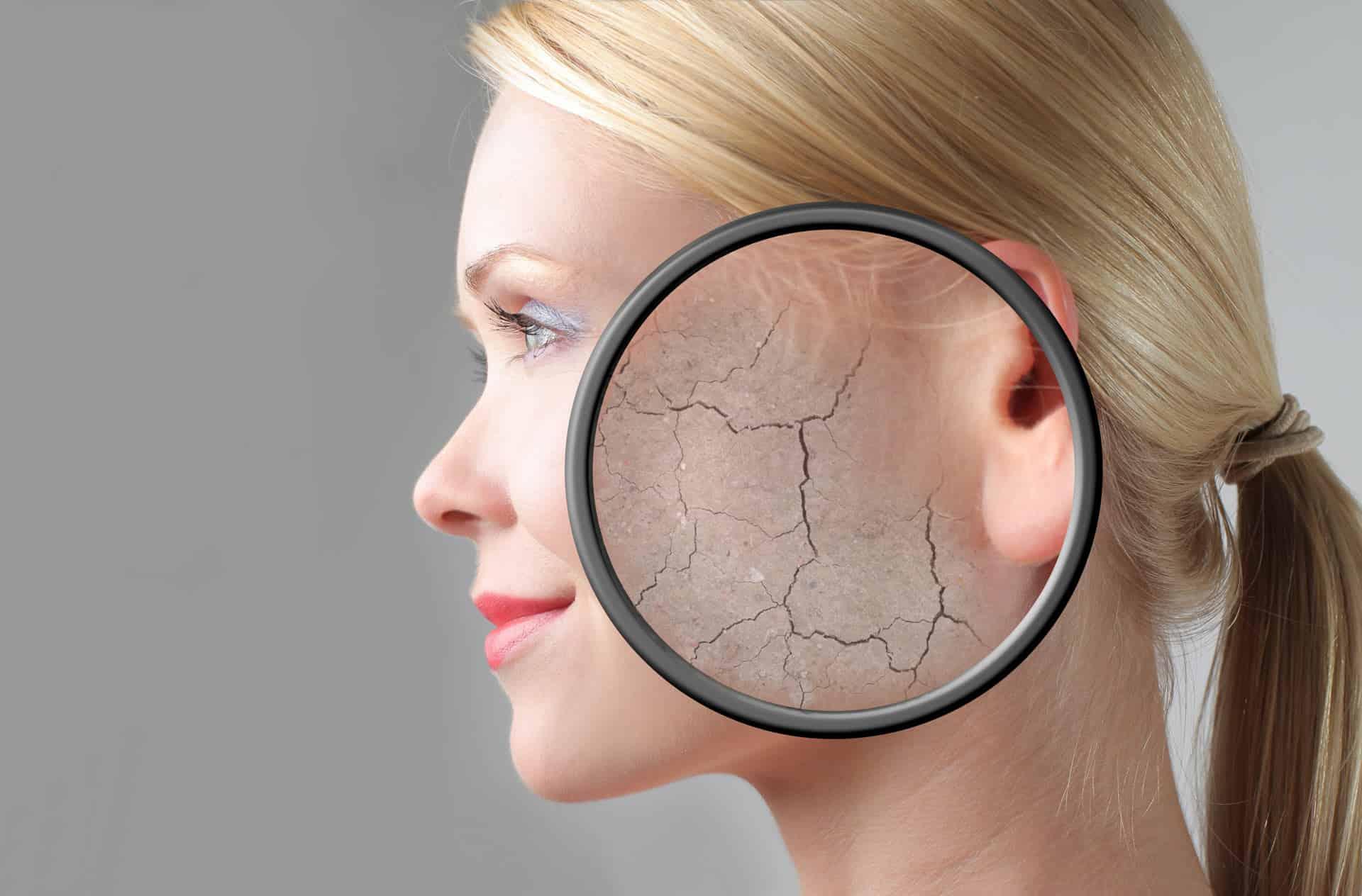 Fruchsäurepeeling vermindert Risse in der Haut